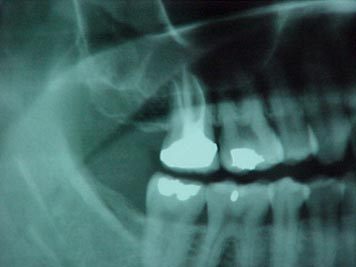 Dental Root canals are believed to create an environment for chronic infection and toxins.