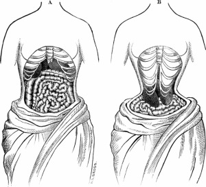 What happens to us when we choose to don a corset?